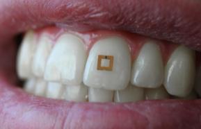 Bientôt une dent intelligente pour mieux manger !