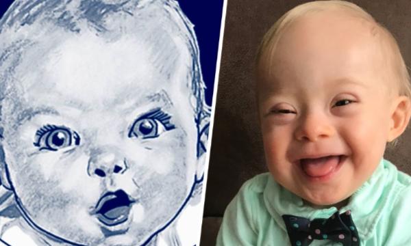 Un bébé trisomique choisit comme égérie de la marque Gerber (groupe Nestlé)